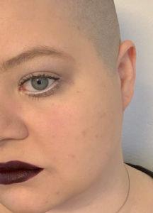 Das Bild zeigt eine Frau, die Glatze trägt